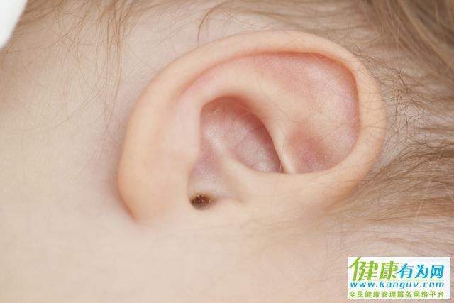 耳朵经常痒痒,可以随便掏吗?并非耳屎多,其实更该注意这些问题